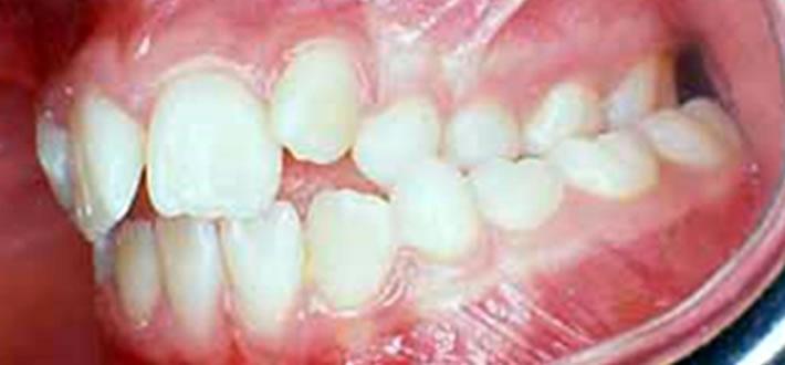 Malocclusione Dentaria