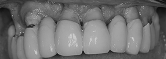 perdita dei denti