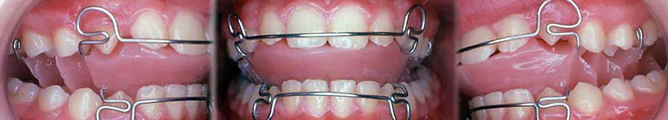 Poliambulatorio Logos Volpato - Ortodonzia Funzionale
