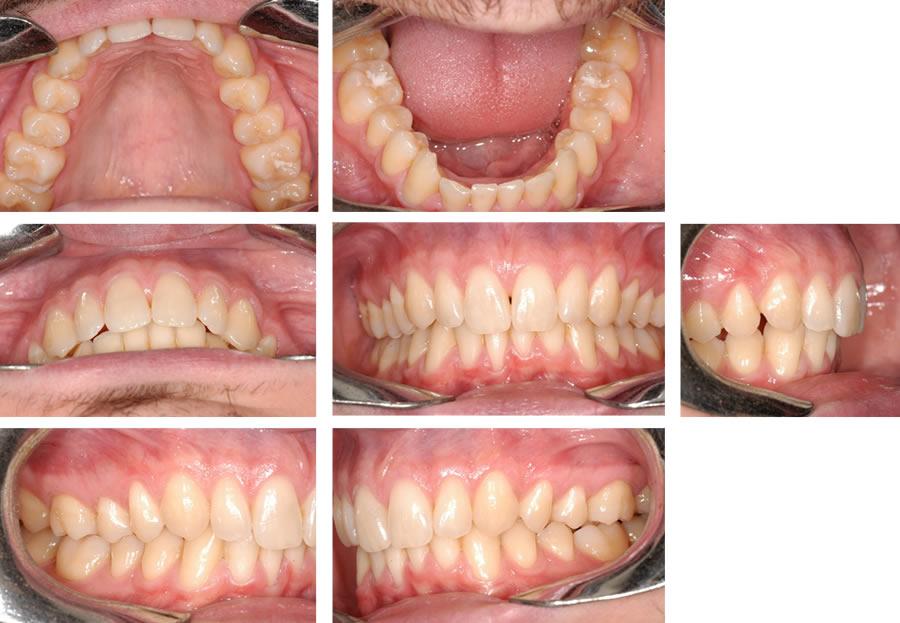 Malposizione Dentaria