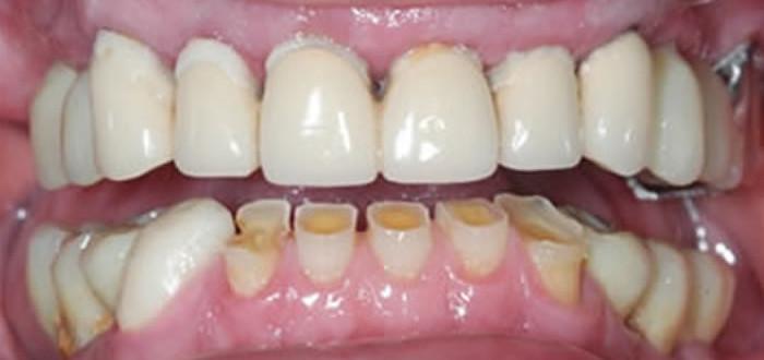 Deterioramento Dentario